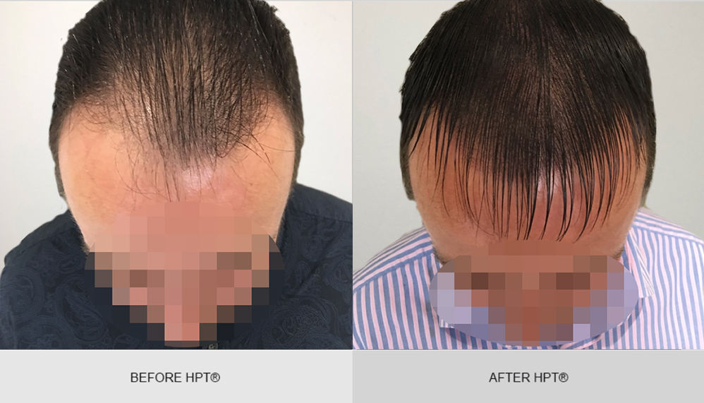 Balding - SMP photos before and after