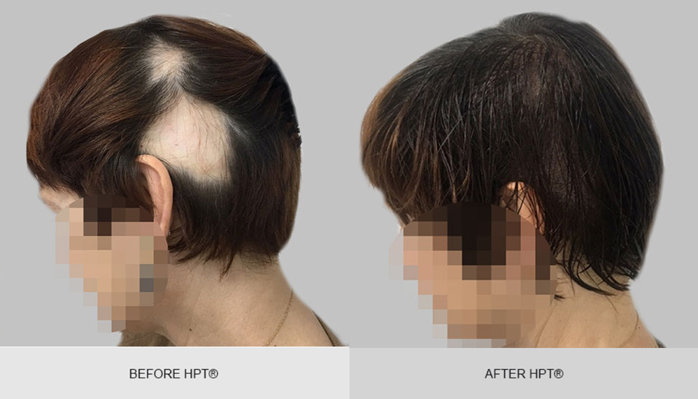 Womens Scalp Camouflage - Before and After