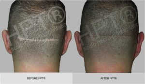 Before & After Scar Cover up - SMP for Men
