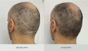 Scalp Micro Pigmentation Scar Camouflage