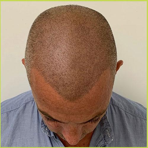 Shaven Head Scalp Micro Pigmentation - Results