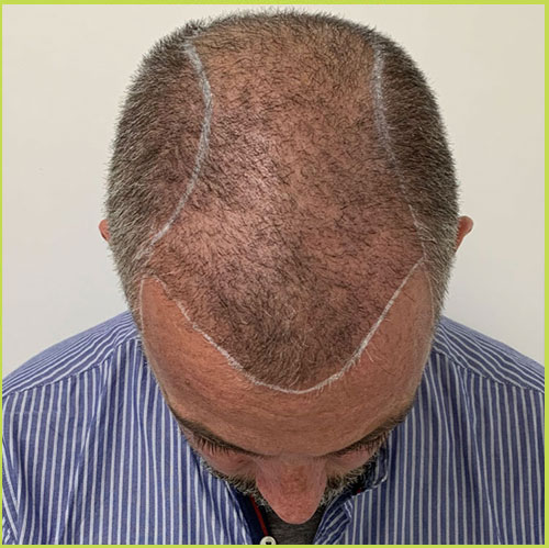 Male Scalp Micropigmentation - Before