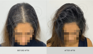Before and After - Scalp Micro pigmentation for Women