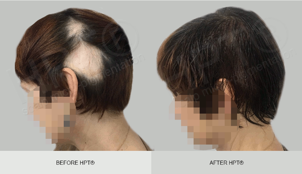 Before & After photos of female SMP