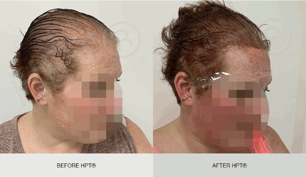 Female Scalp Micro Pigmentation Results