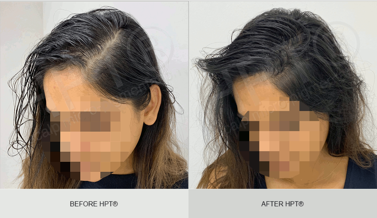 Female Scalp Camouflage - Micro Pigmentation