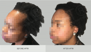 Before and After - Afro Hair - Scalp Micro Pigmentation