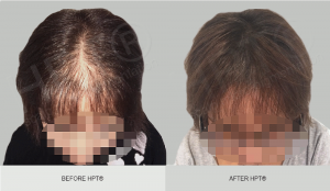 Scalp Micropigmentation for Women - Results