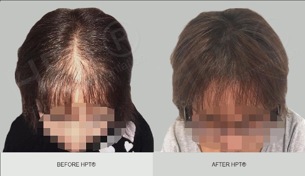 Scalp Micropigmentation for Women - Results