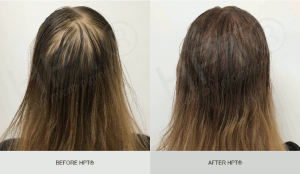 Scalp Micropigmentation Results for Women