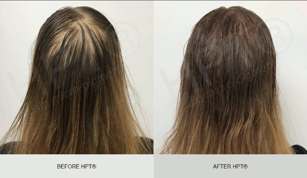 Scalp Micropigmentation Results for Women