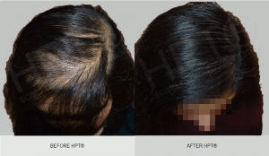 Does Scalp Micropigmentation for women work? Results