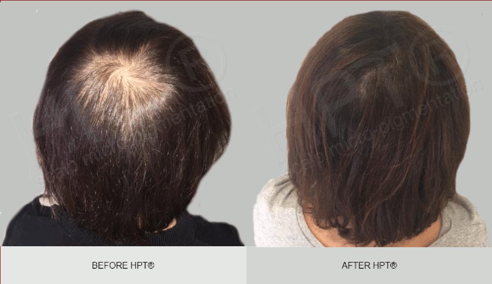 SMP Female - Scalp Micropigmentation for Women