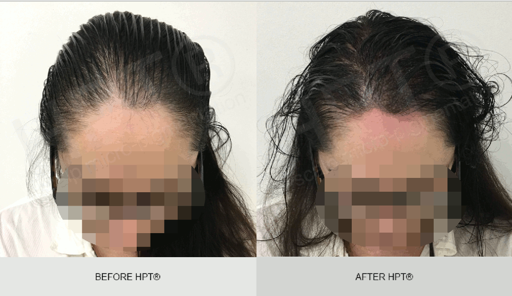Female SMP - Before & After