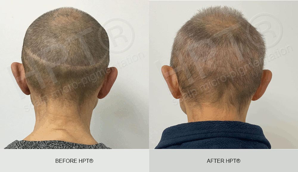 Male Scalp Camouflage - before and after - scar covering