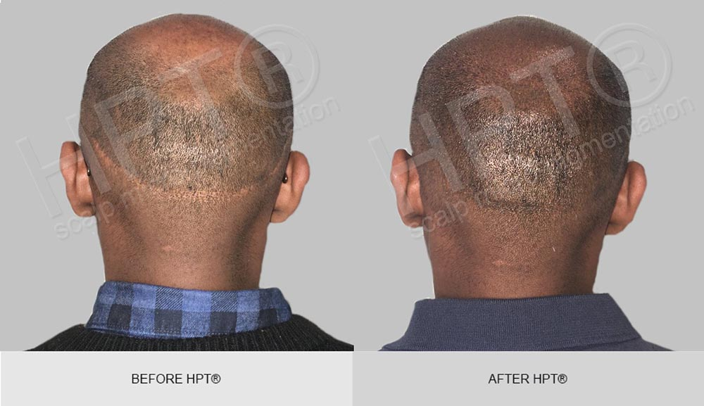 Male Hair Tatoo - Before and After - Scalp Micro Pigmentation