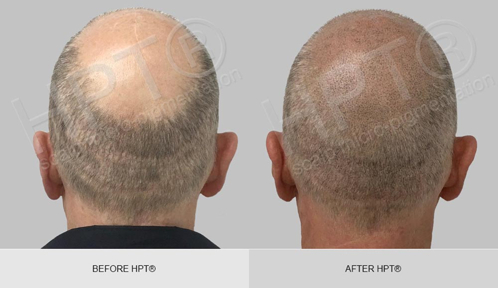 Male Bald Before & After - Scalp Micro Pigmentation