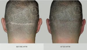 Before and After Scar Scalp Micro pigmentation - black hair