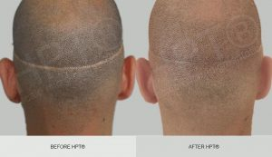 Before and After Scar Camouflage - Scalp Micro Pigmentation