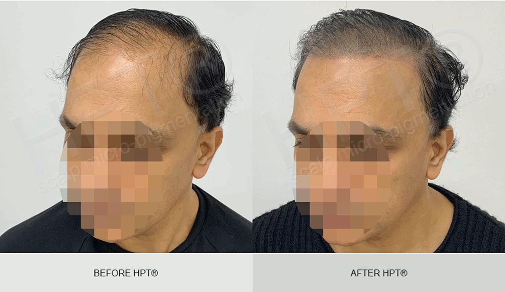 Scalp Camouflage Results - Male Baldness