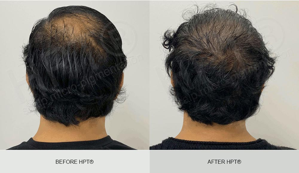 Male Scalp Camouflage - Results