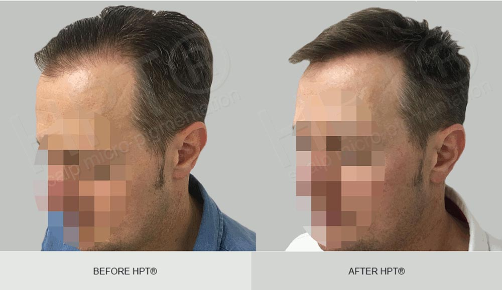 Male Scalp Micropigmentation - Before & After