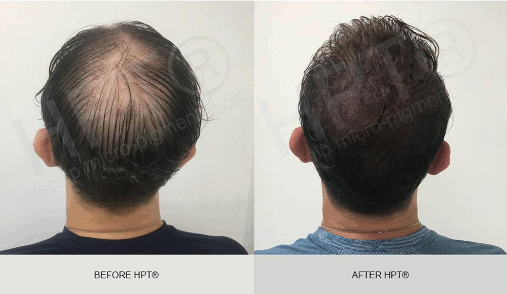 HPT Scalp Camouflage for Men - Results