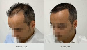 Scalp Camouflage - Mens - Before and After