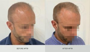 Scalp Micropigmentation for Men - Results