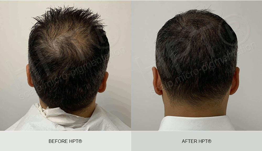Scalp Micropigmentation for Men - Results