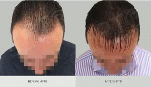 Scalp Micro Pigmentation for Men - Before and After