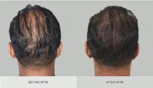 Scalp Camouflage for Men - Before and After