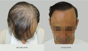 Scalp Camouflage for Men - Results