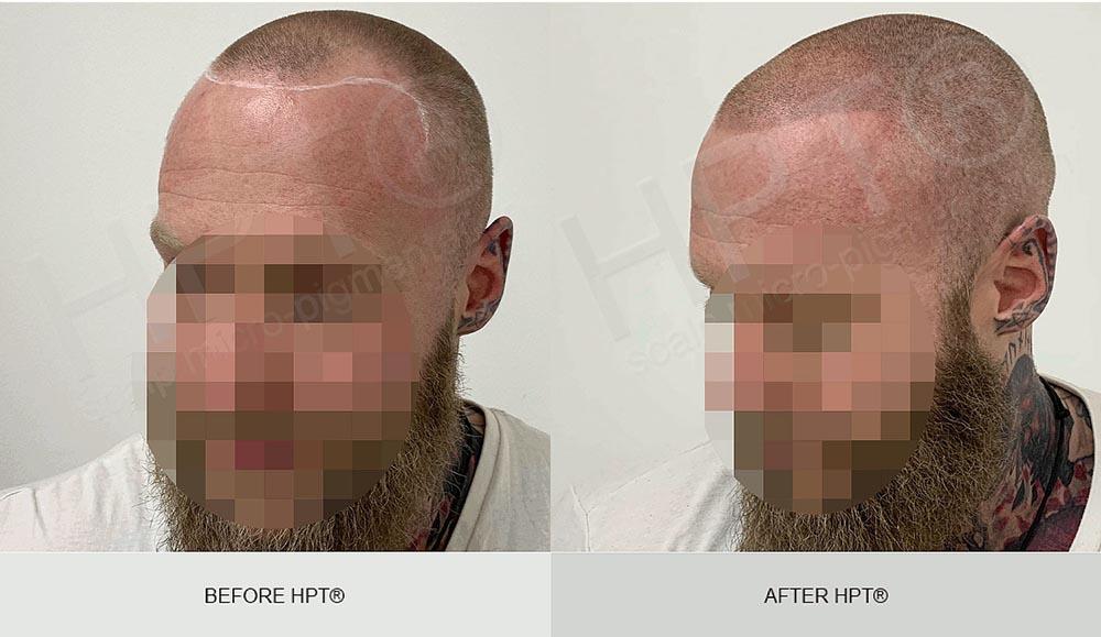 SMP results - brown hair Men