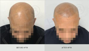 Male - Hairline Tattoo - Before & After - Scalp Micro Pigmentation
