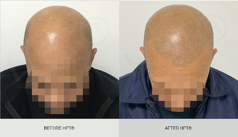 Light Shaven Head - SMP Results