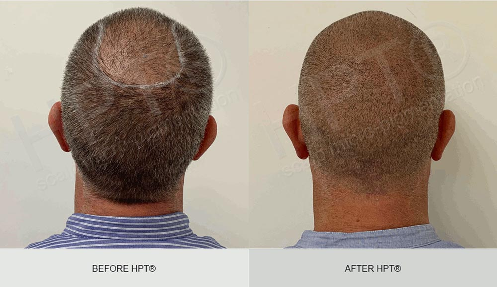 Hair Tattoo results for Men