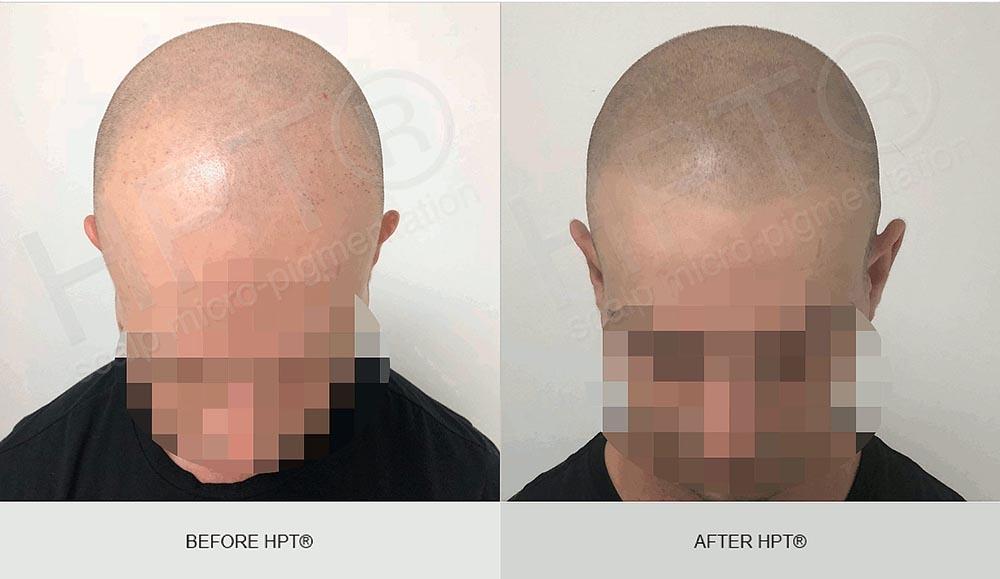 SMP Results - Shaven Head - Men