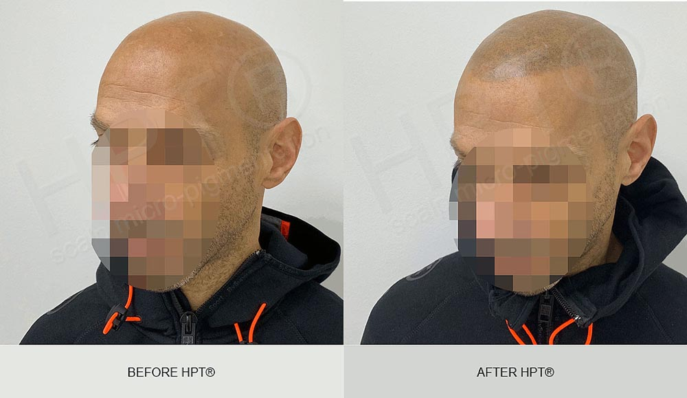 Hair Tattoo Results - SMP for Men
