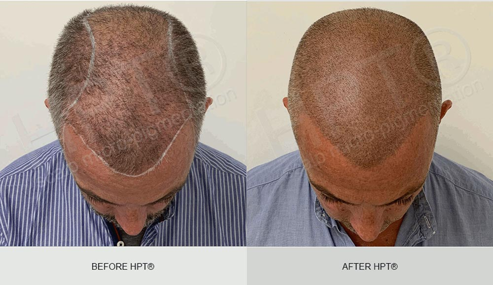 Scalp Hairline Tattoo - Male Scalp Micro Pigmentation