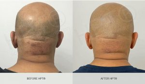 Hair Tatoo for Men Results Pictures