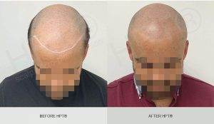 SMP Hair Tattoo for Men - Results