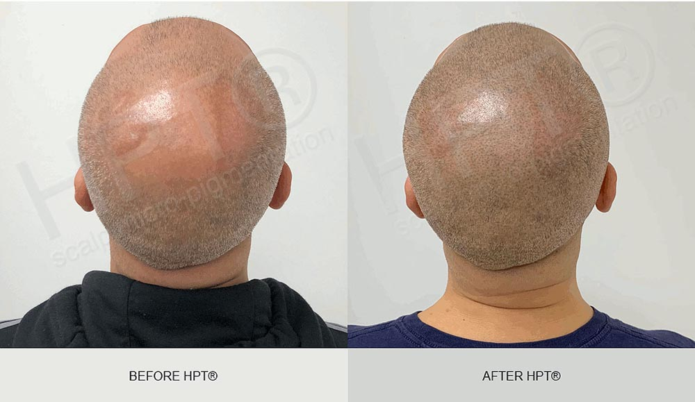 SMP results before and after for Men