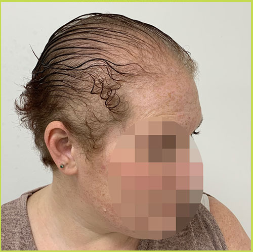 Up close photo of Female Scalp Micropigmentation